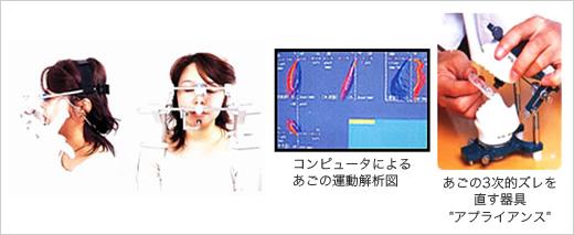 アプライアンスによる歯の咬み合わせ治療のイメージ