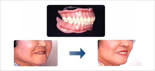 アンチエイジング入れ歯システム
