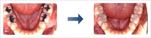 ナノフィラーCRコースのイメージ