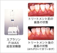 スプラソンP-MAX超音波機器 トリートメント前の歯茎の状態 トリートメント後の歯茎の状態(はれがひいてきています)
