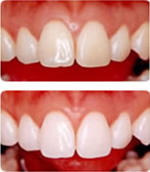 アンチエイジングと審美のための歯のホワイトニングのイメージ
