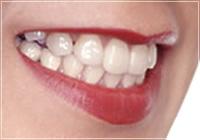 歯と口の総合精密検査のイメージ